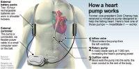 heart-device