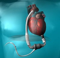 Dick Cheney LVAD device