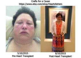 Karen_Transplant-before-after